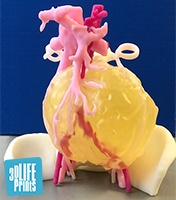3D printed anatomical model